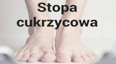 zdjęcie stóp z napisem Stopa cukrzycowa